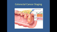 Understanding Colorectal Cancer Signs, Symptoms and Treatments
